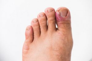 Avoiding Ingrown Toenails